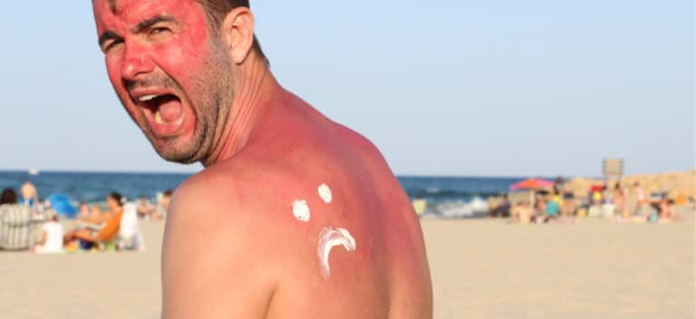 日焼け予防
