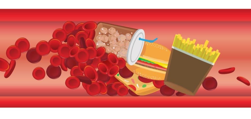 血管内の悪玉コレステロール