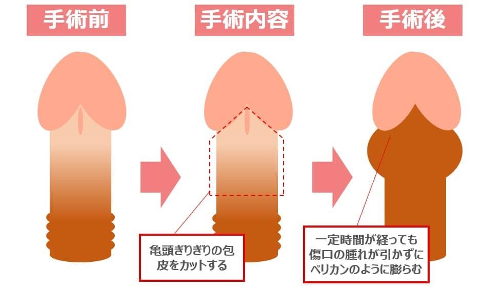包茎手術によるペリカン変形
