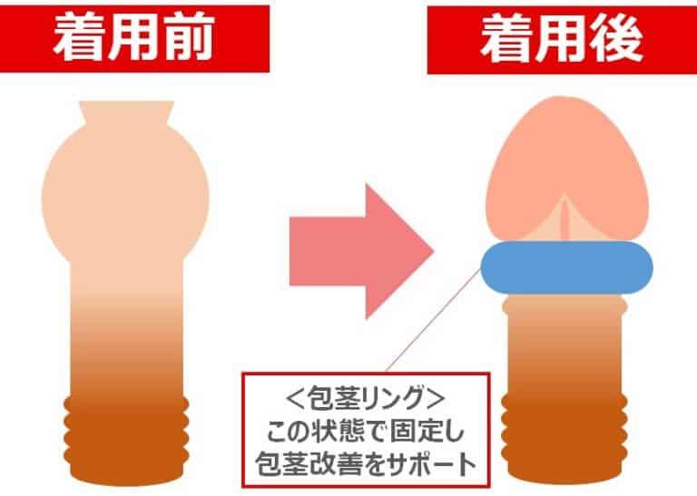 包茎リングの仕組み