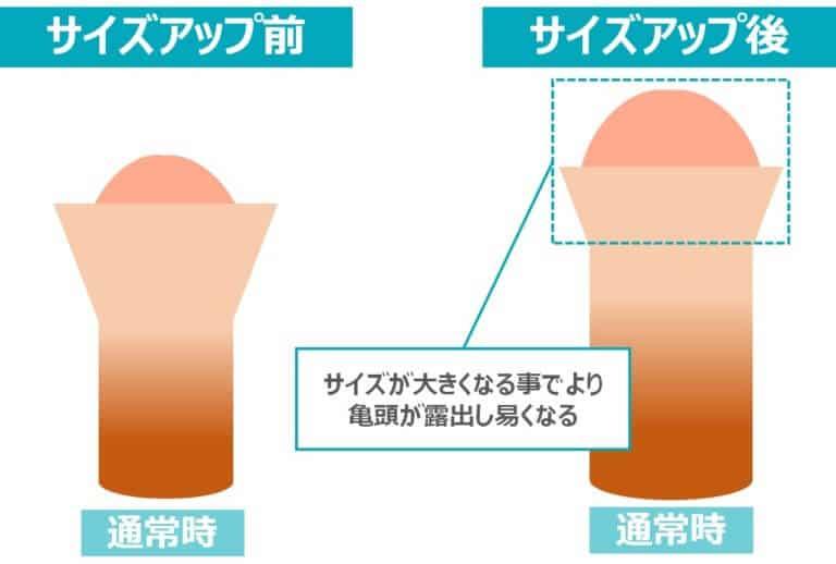 サイズアップによる包茎改善効果