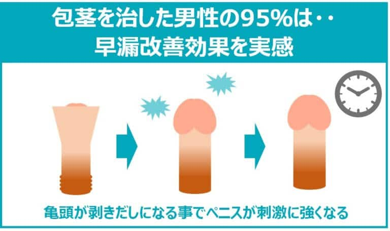 包茎治療による早漏改善効果