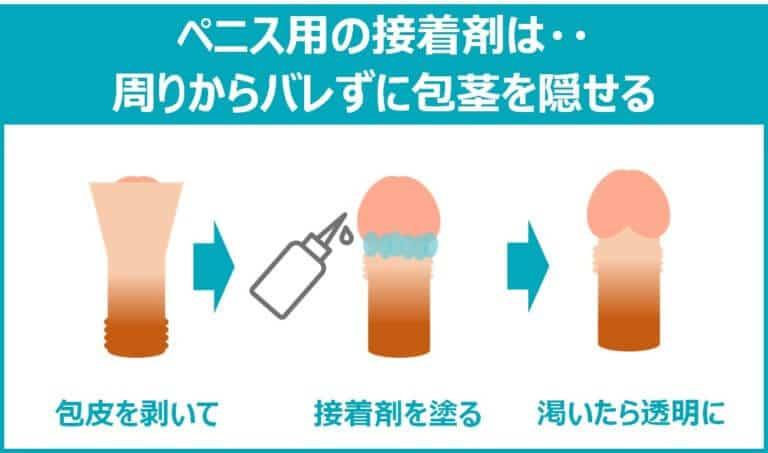 ペニス用の接着剤による治し方