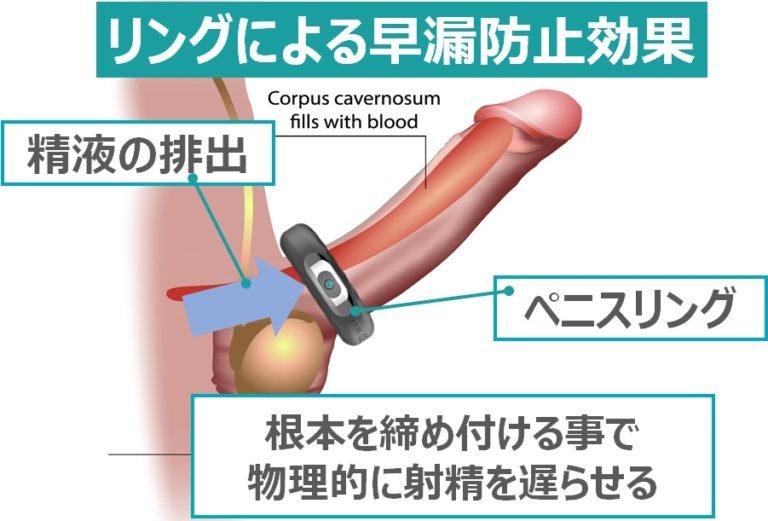 ペニスリングによる早漏防止効果