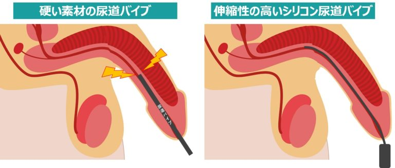 尿道バイブの素材選びのポイント