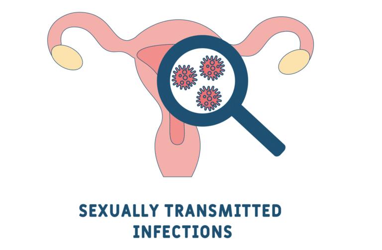 膣 性感染症