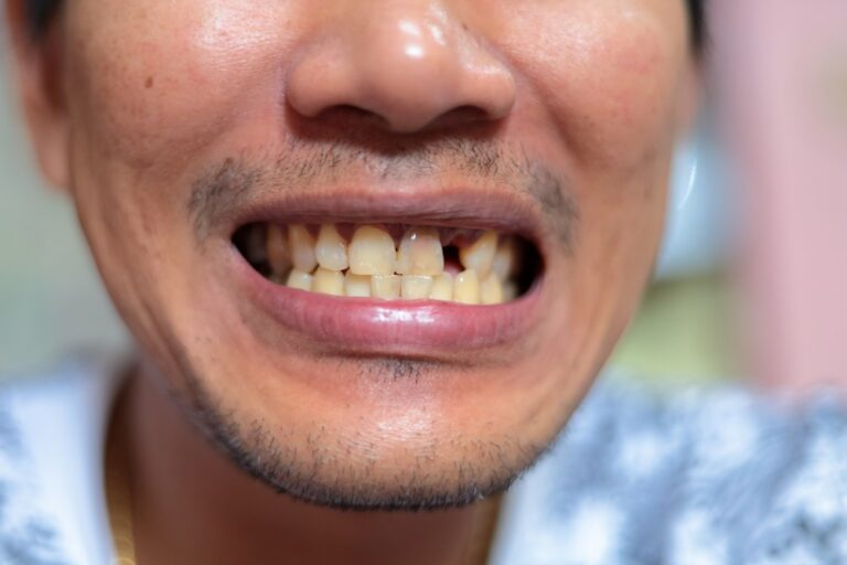 歯が汚い男性